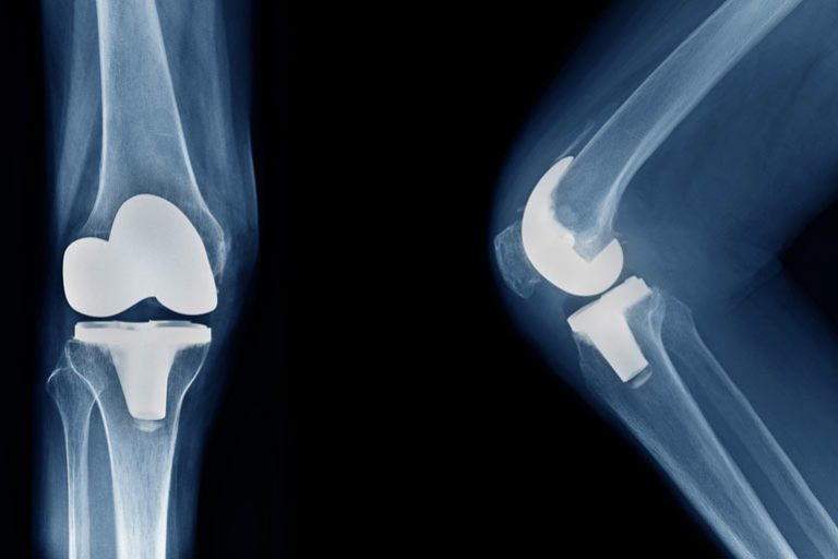 regen_joint_replacement